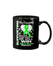 My Daughter  Kidney Disease Awareness Shirt Mug thumbnail