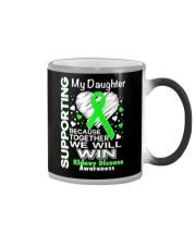 My Daughter  Kidney Disease Awareness Shirt Color Changing Mug thumbnail