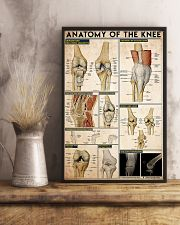 KNEE 11x17 Poster lifestyle-poster-3
