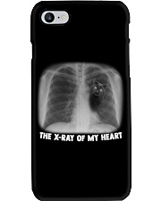 THE X-RAY OF MY HEART Phone Case tile