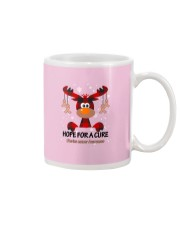 uterine-cancer-peach-hfac Mug thumbnail