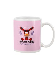 hodgkins-lymphoma-violet-hfac Mug thumbnail