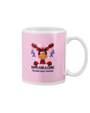 pancreatic-cancer-purple-hfac Mug thumbnail