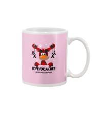 melanoma-black-hfac Mug thumbnail