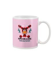 ovarian-cancer-teal-hfac Mug thumbnail