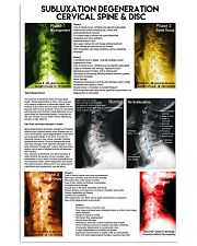 Chiropractor subluxation cervical lqt nna 11x17 Poster thumbnail