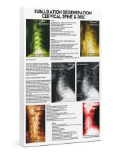 Chiropractor subluxation cervical lqt nna 24x36 Gallery Wrapped Canvas Prints front