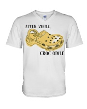 After While Croc Odile V-Neck T-Shirt thumbnail