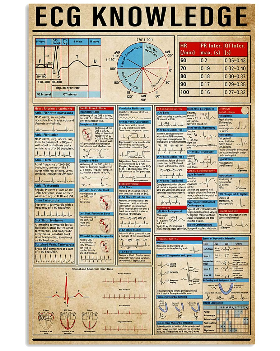 ECG Knowledge 11x17 Poster