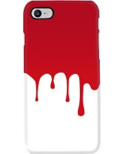 Dude I'm Bleeding Phone Case thumbnail