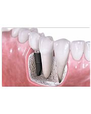 Dental Implants Poster 17x11 Poster front