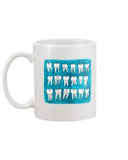 Dental Painting art Mug back