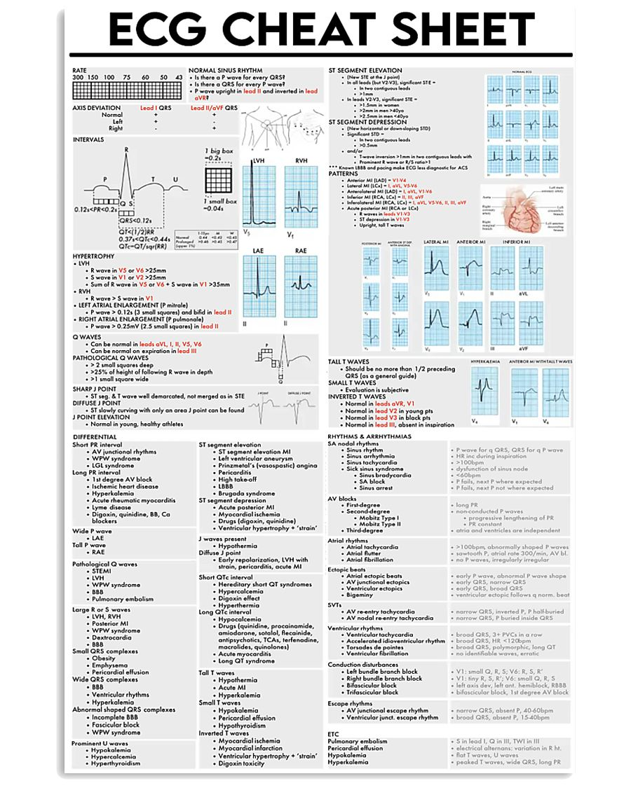 ECG Cheat Sheet Cardiologist 11x17 Poster