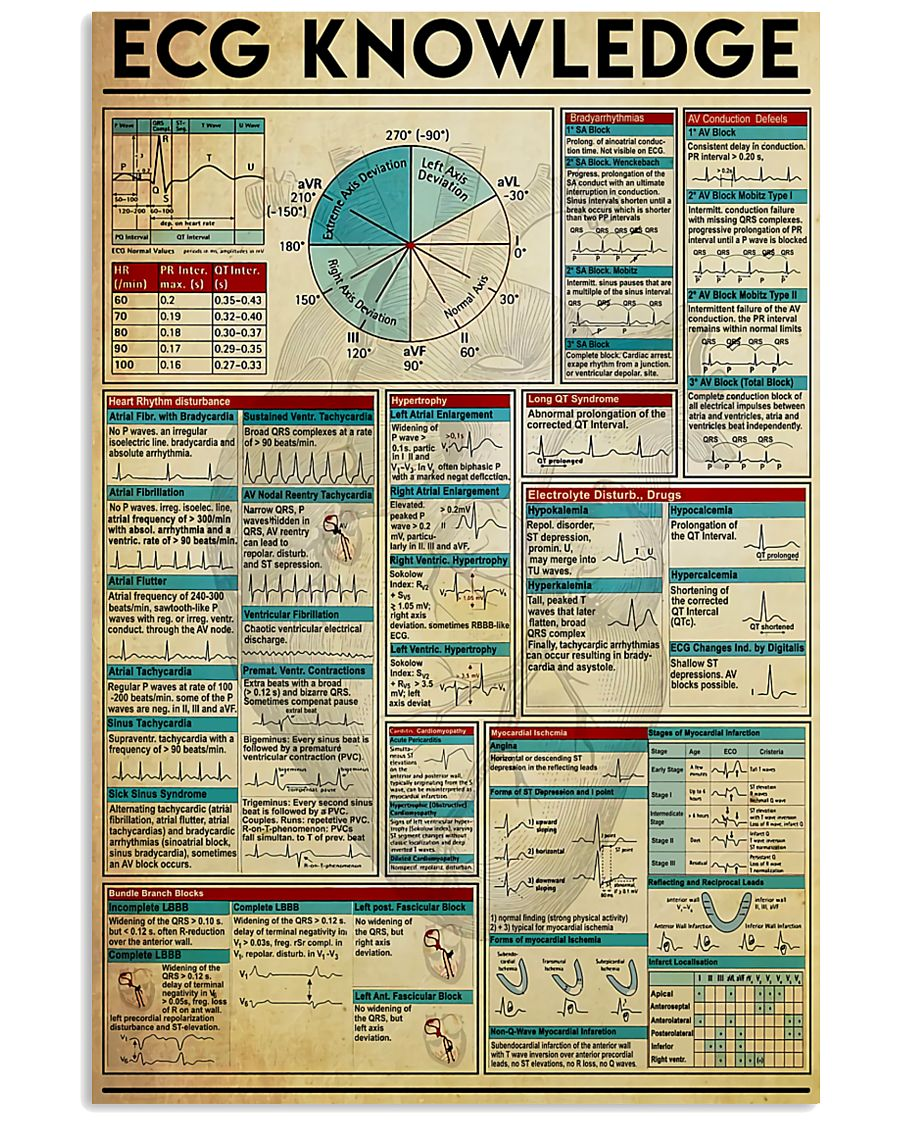 Paramedic ECG Knowledge 11x17 Poster