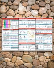 Paramedic EKG Interpretation 17x11 Poster aos-poster-landscape-17x11-lifestyle-15