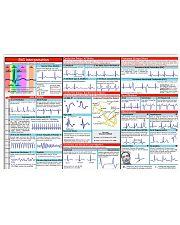 Paramedic EKG Interpretation 17x11 Poster front