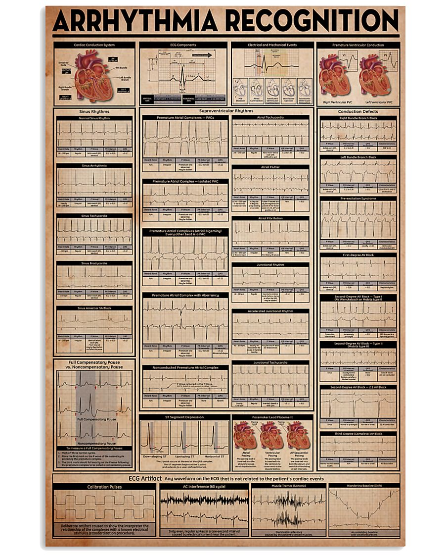 Paramedic Arrhythmia Recognition 24x36 Poster