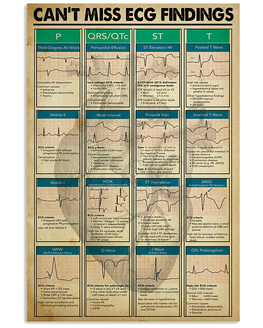Can't Miss ECG Findings Cardiologist 11x17 Poster