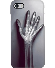 Radiologist Real X-ray Bone  Phone Case i-phone-7-case