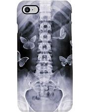 X-Ray Bone Image Radiologist Phone Case i-phone-7-case