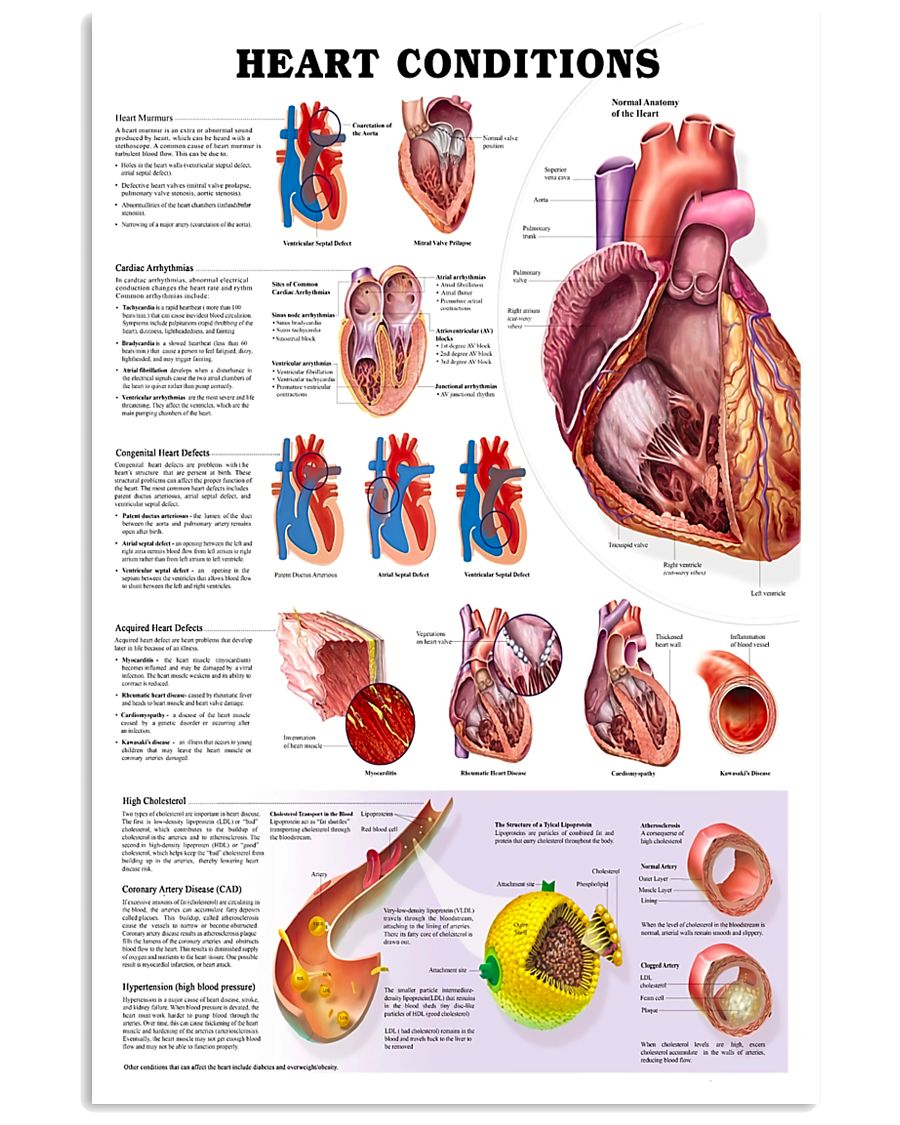 Paramedic Heart Condition 11x17 Poster