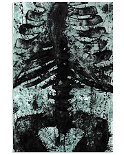 X-ray Print Radiology  11x17 Poster front