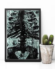X-ray Print Radiology  11x17 Poster lifestyle-poster-8