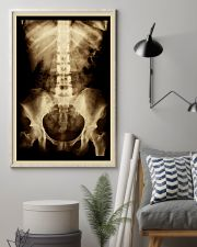 X-ray Film Radiology  11x17 Poster lifestyle-poster-1