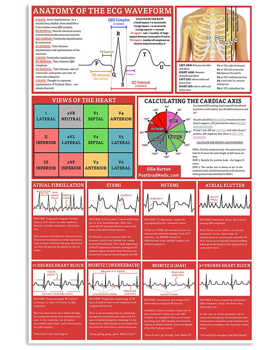 ECG Waveform Cardiologist 11x17 Poster