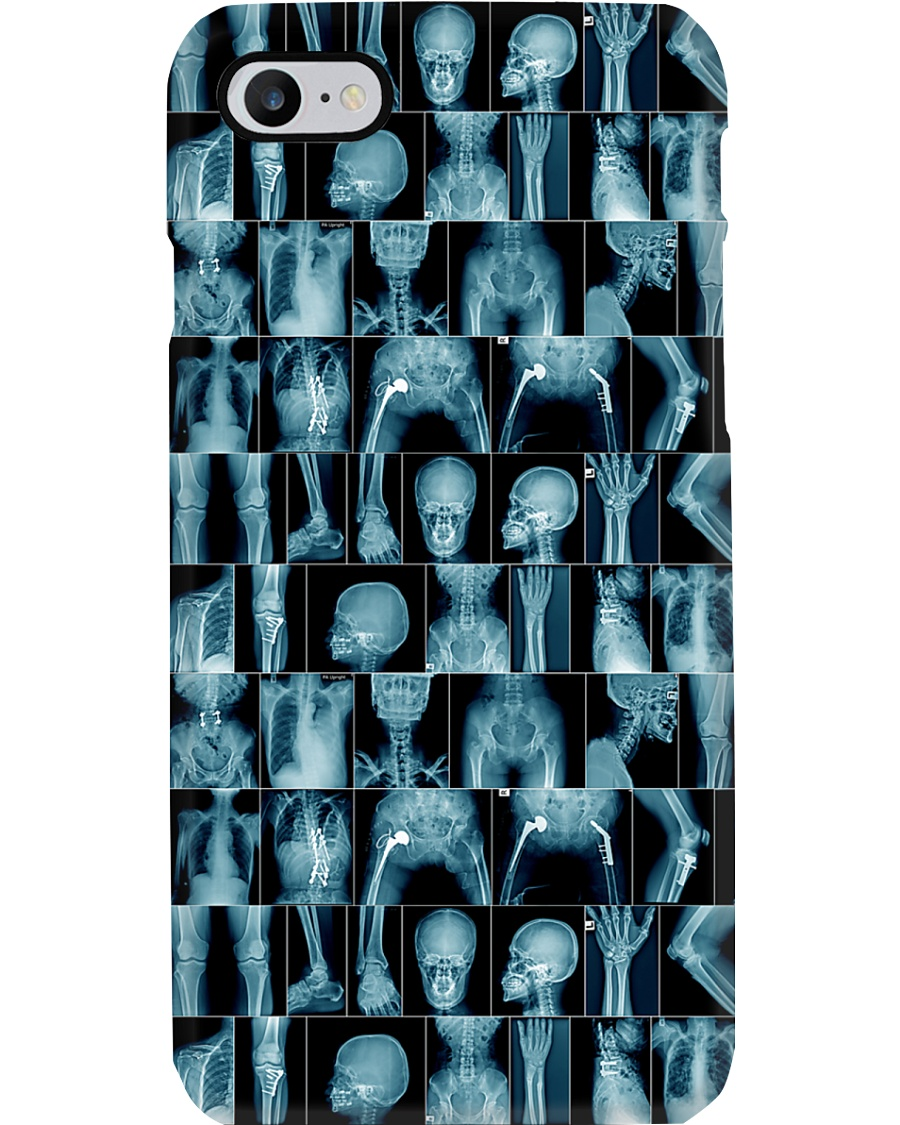 Many X-ray Images Radiologist Phone Case