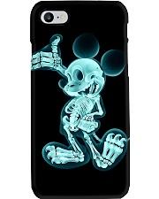 X-ray Micky Radiologist Phone Case i-phone-7-case