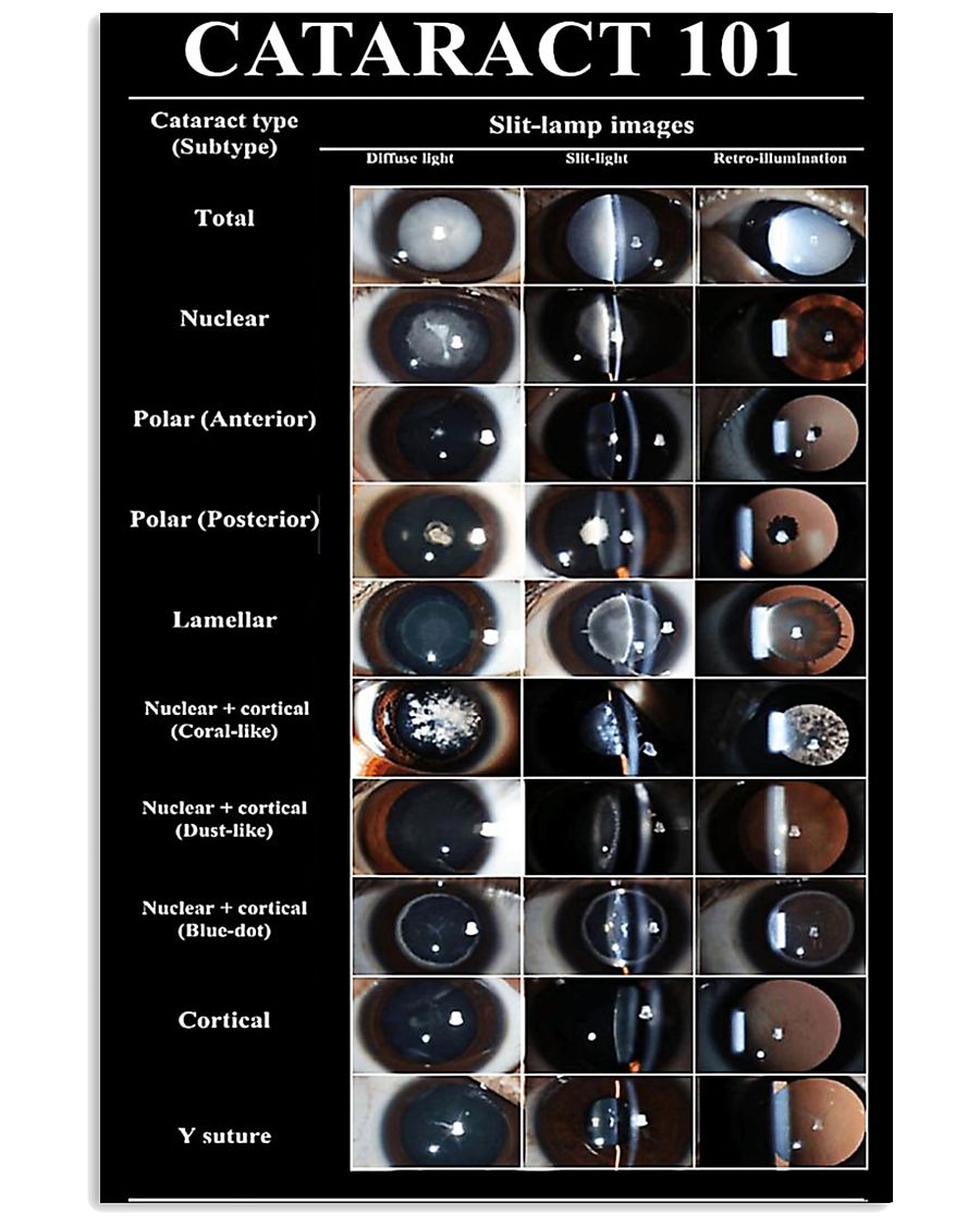 Optometrist Cataract 101 11x17 Poster