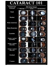 Optometrist Cataract 101 11x17 Poster front
