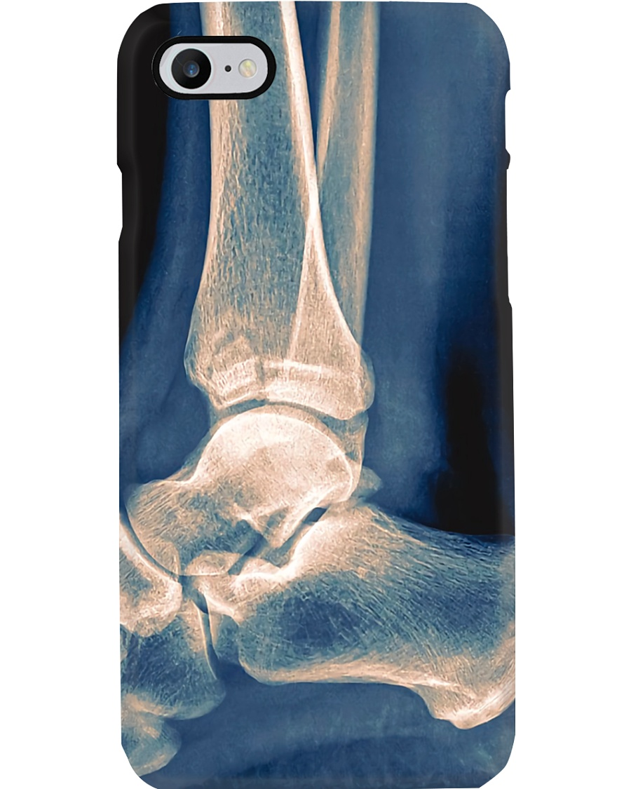 Radiologist X-ray Ankle Phone Case
