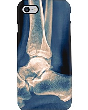 Radiologist X-ray Ankle Phone Case i-phone-7-case