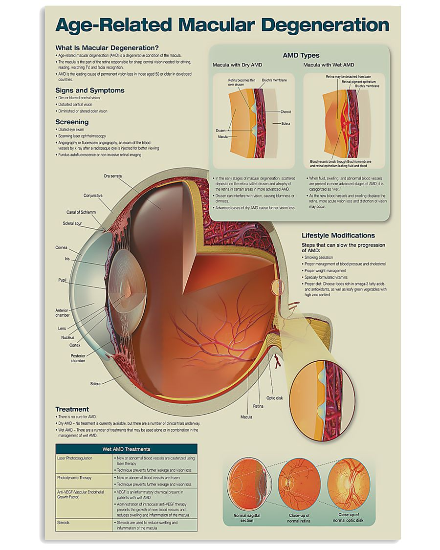 Optometrist Age-Related Macular Degeneration 11x17 Poster
