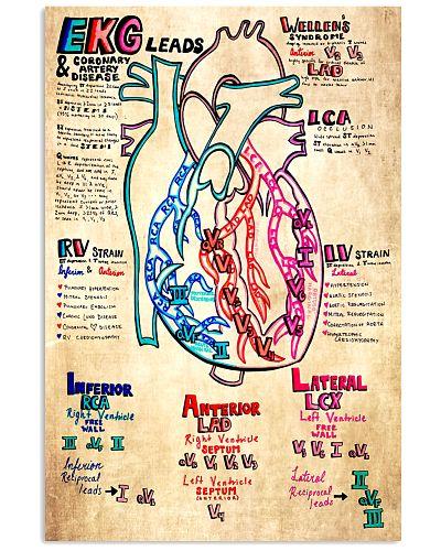 Paramedic EKG Leads