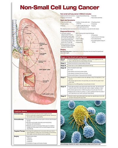 Respiratory Therapist Non-Small Cell Lung Cancer