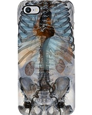 Body X-ray Radiology Phone Case i-phone-8-case