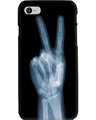 X-ray Peace Sign Radiologist