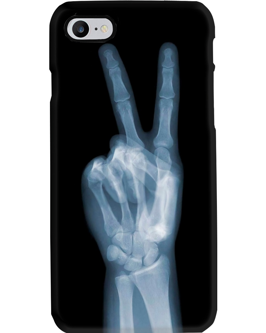 X-ray Peace Sign Radiologist Phone Case