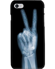 X-ray Peace Sign Radiologist Phone Case i-phone-7-case