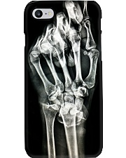 Hand X-ray Radiology Phone Case i-phone-7-case