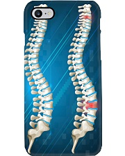Chiropractor Gift Phone Case i-phone-7-case