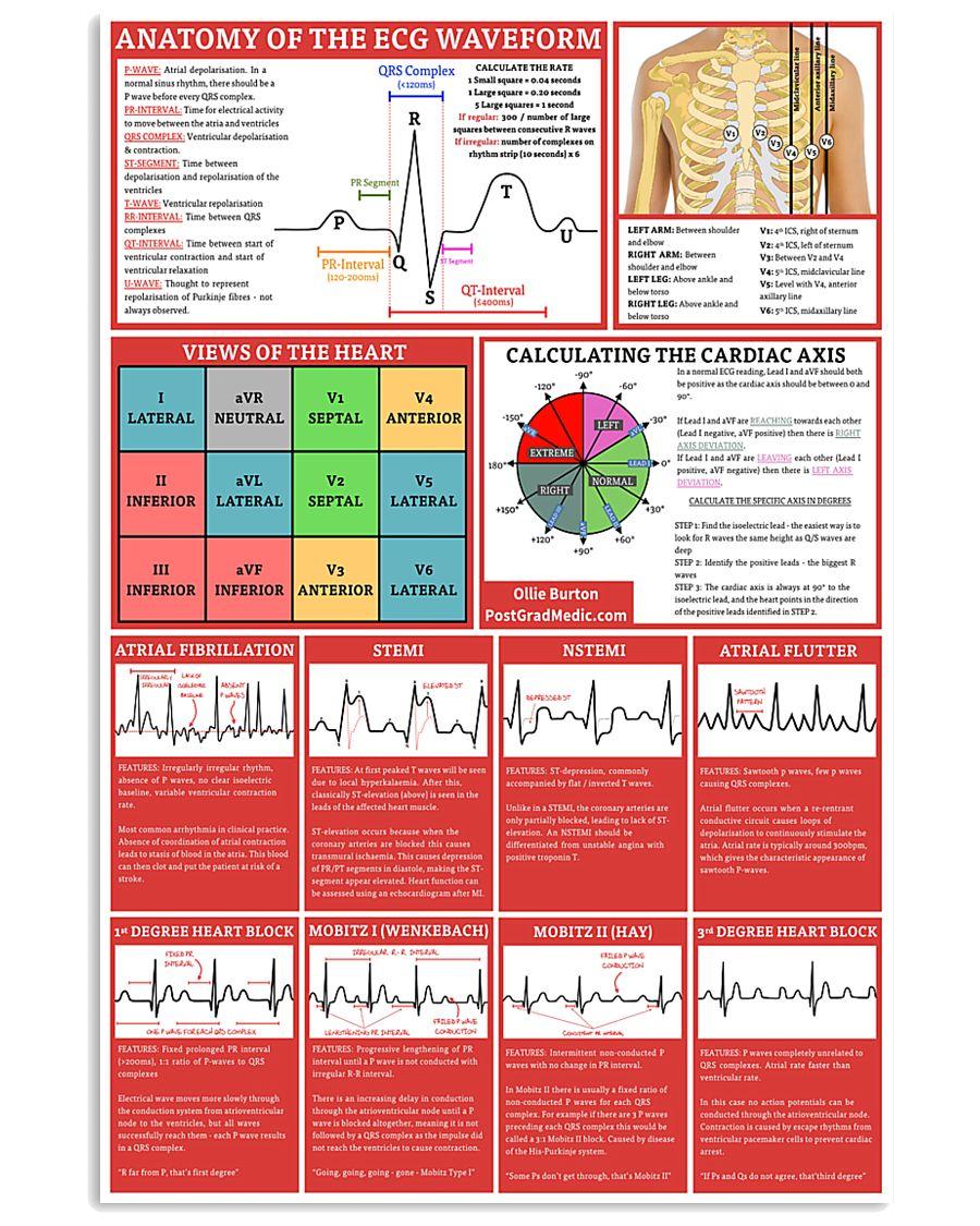Paramedic Anatomy Of The EGC Waveform 11x17 Poster