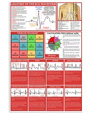 Paramedic Anatomy Of The EGC Waveform 11x17 Poster front