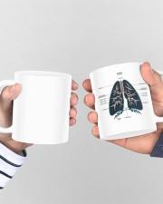Lung anatomy mug dvhh ntv Mug ceramic-mug-lifestyle-44