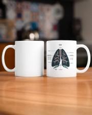 Lung anatomy mug dvhh ntv Mug ceramic-mug-lifestyle-51