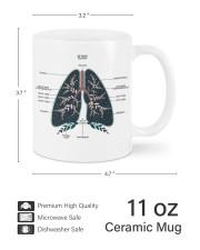 Lung anatomy mug dvhh ntv Mug ceramic-mug-lifestyle-62