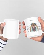 OBGYN Vulva and clitoris anatomy mug dvhh ntv Mug ceramic-mug-lifestyle-44